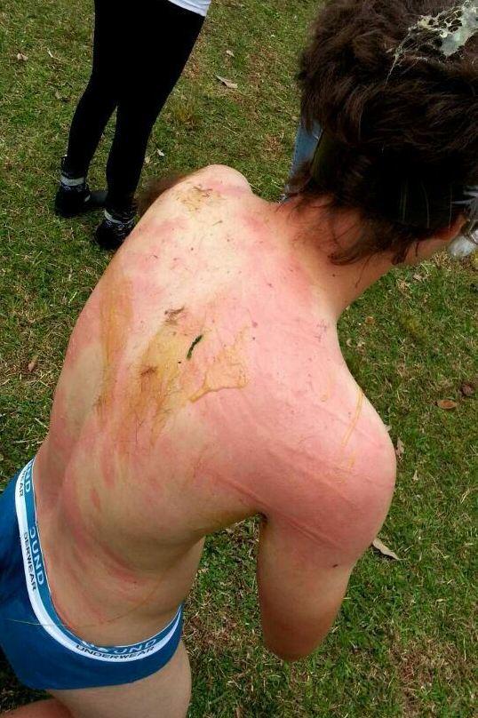 El cuerpo de un bautizado acusa recibo de los maltratos que recibieron.